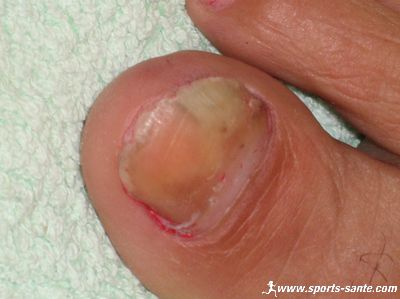 upload_to/images_forum/pied_moisi.jpg